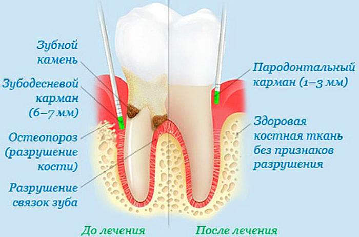 Чем чистить зубы от пародонтита