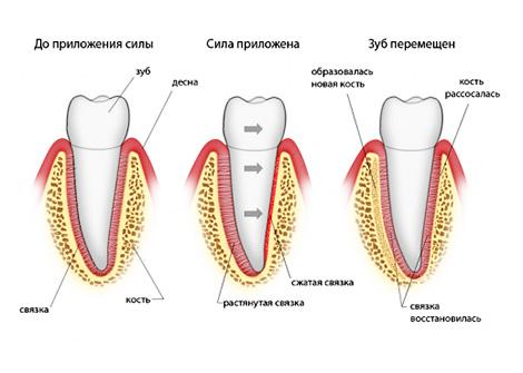 Брекеты на зубы с удаленными нервами